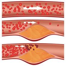 Estudio sobre presión arterial y Aneurismas de aorta abdominal