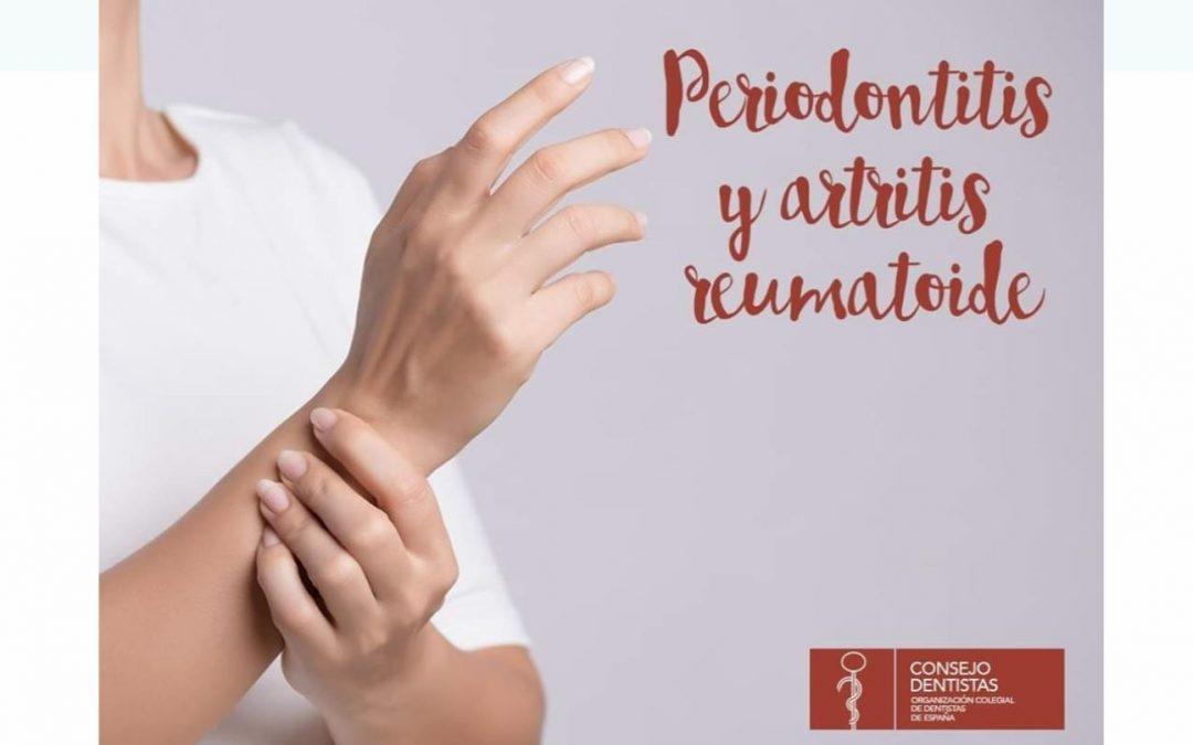 Periodontitis y Artritis reumatoide